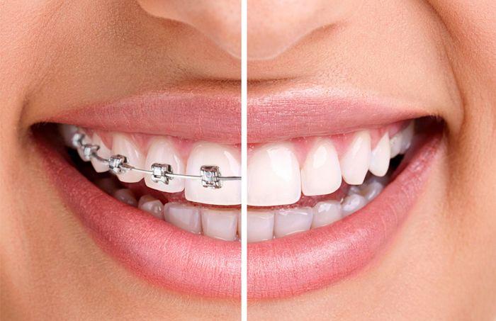 Aparate dentare - mituri